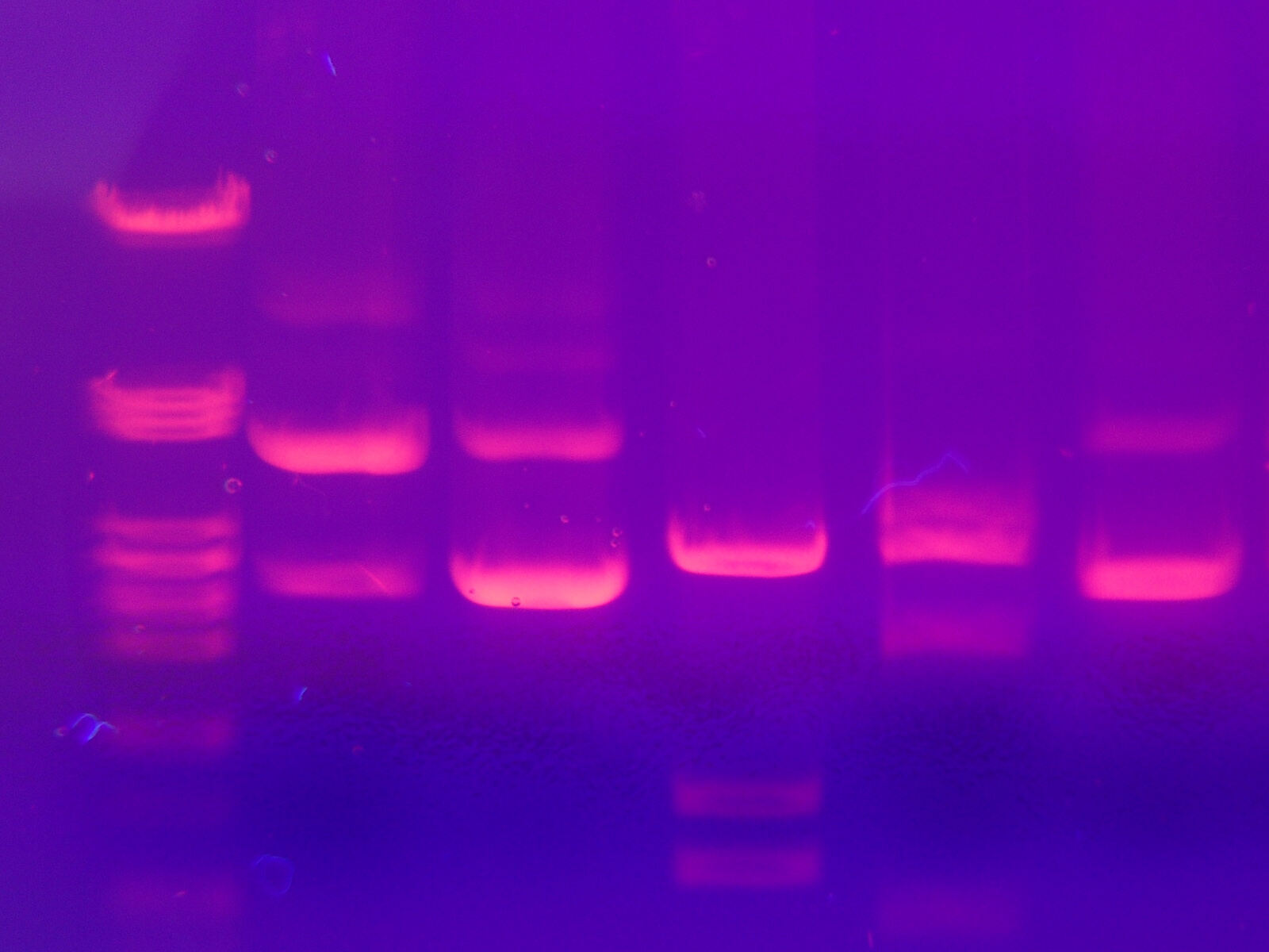 band of DNA visible in a gel electrophoresis experiment