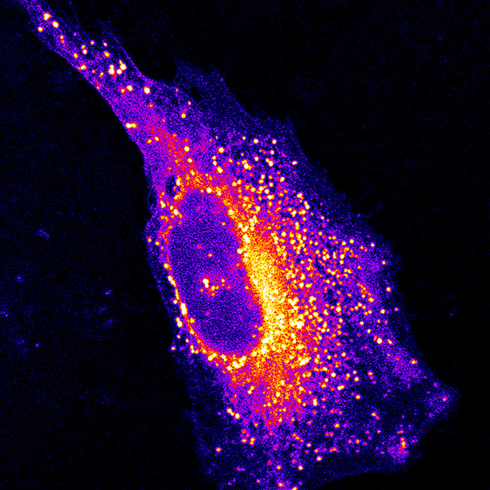 A fluorescent chemical group reveals the position of lipids in a cell.